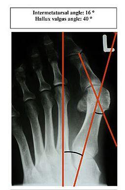 x-ray of bunions.